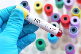 Testes rápidos de detecção do HIV serão realizados nessa sexta, 29, no campus de Irati